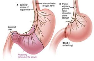 antrectomy
